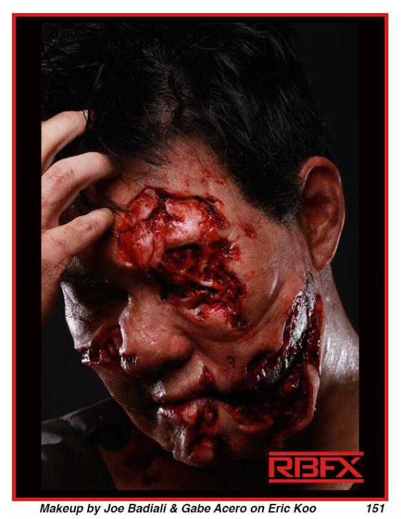 Joe Badiali - Severe Trauma