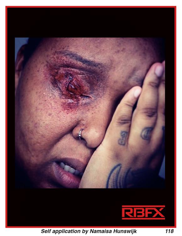 Namaisa Hunswijk - Eye Trauma