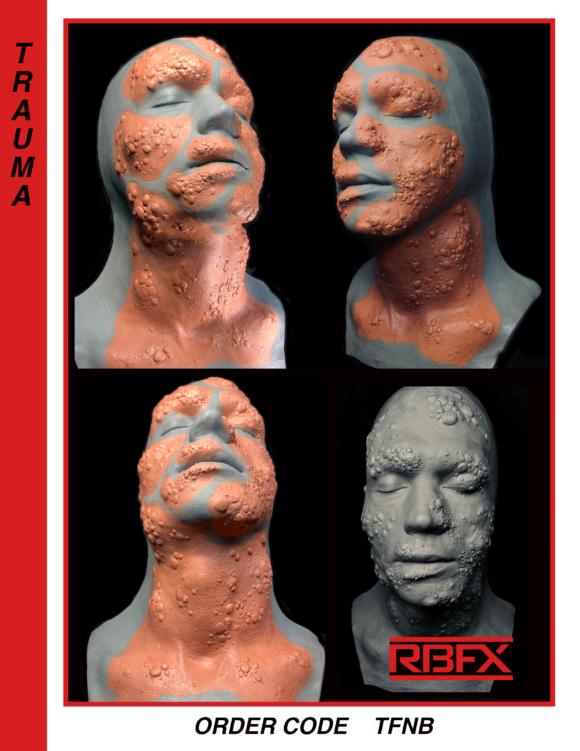 TFNB - mutation/ deformed face & neck
