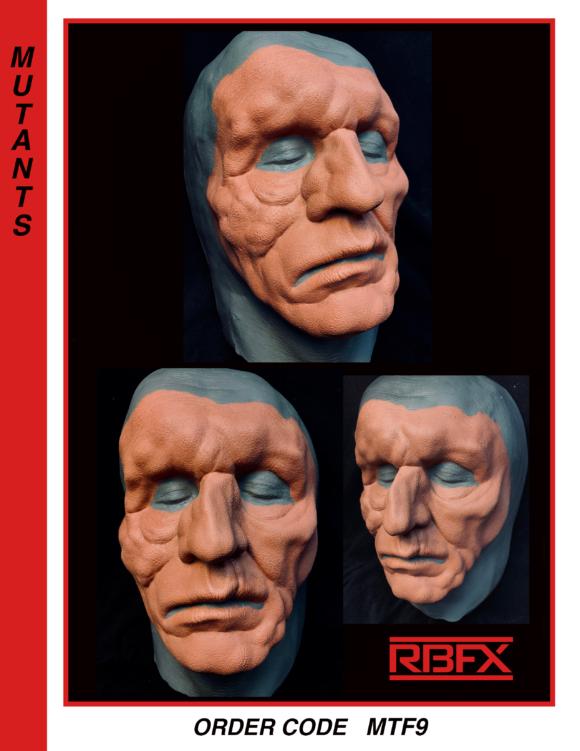 MTF9- mutation/ deformed face